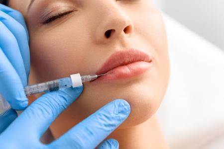 L acide hyaluronique est un élément naturel de la substance fondamentale de  notre peau. Le derme est constitué de cellules et d un environnement ... d1d5d12232a